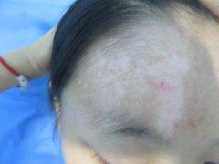白癜风表皮移植术见效明显助康复